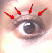 This is my eye. The arrows are pointing to the double eyelid that I've heard Japanese women mention on several occasions.